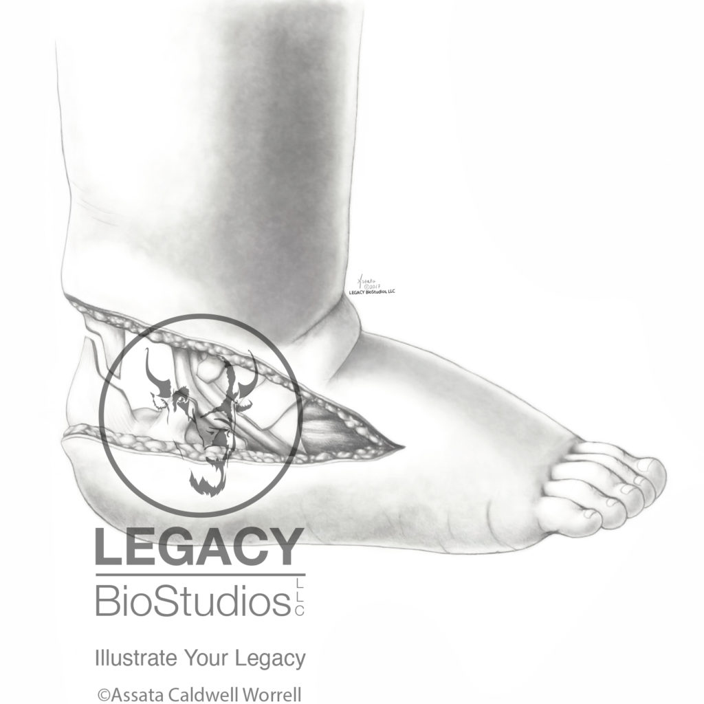 Lateral View of Clubfoot Surgery