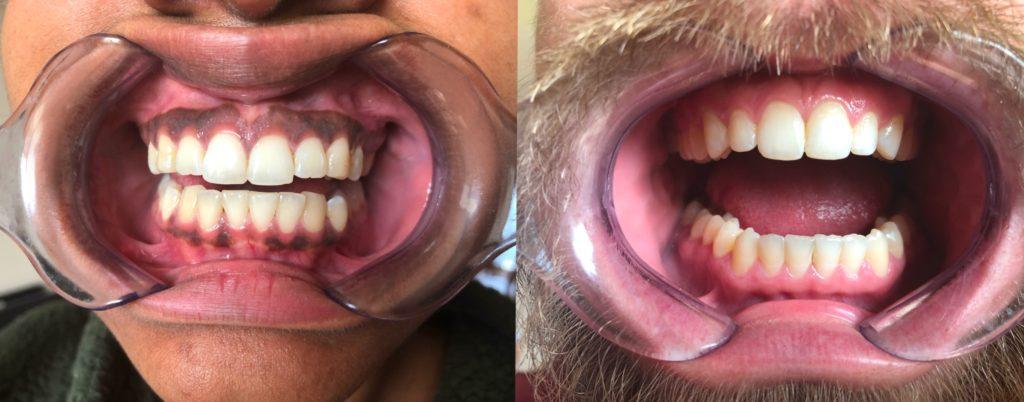 Gum Comparison